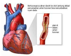 Obat Penyakit Jantung Herbal