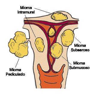 pengobatan alami mioma